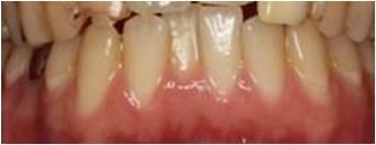 部分矯正治療 治療前 川村歯科クリニック