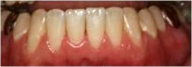 部分矯正治療 治療後 川村歯科クリニック